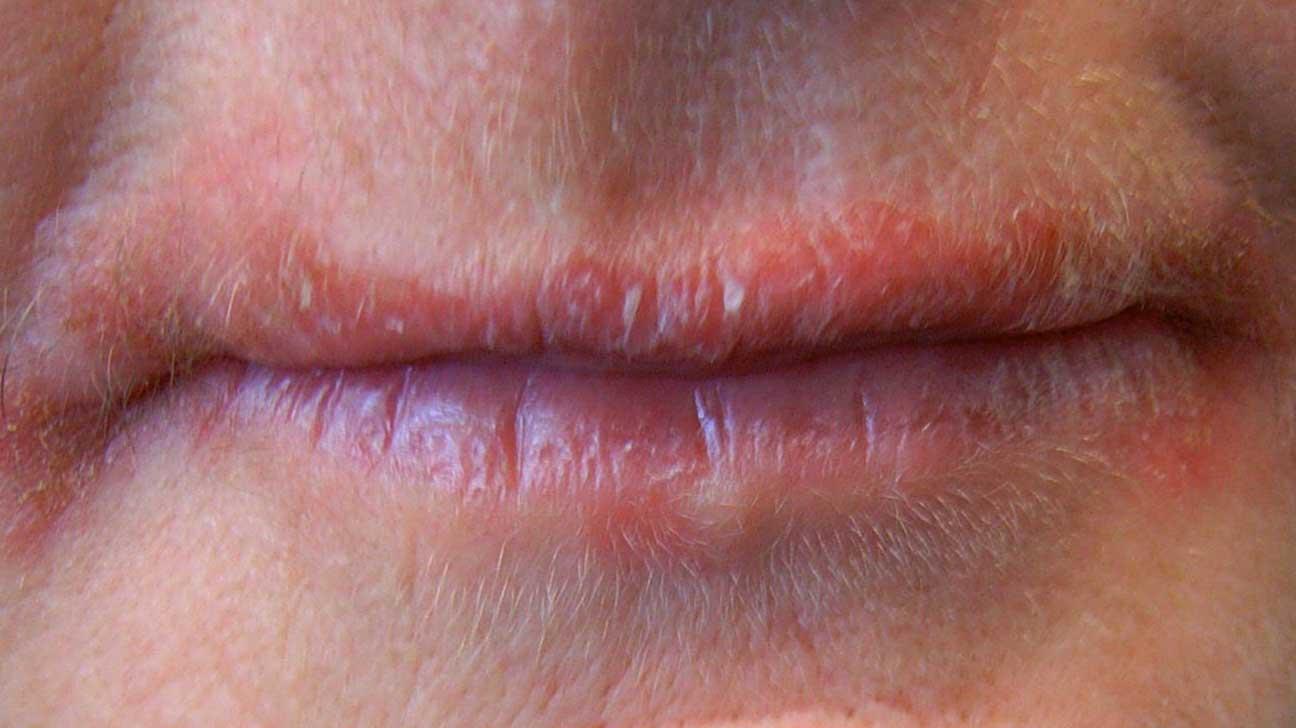 Bottom lip allergy