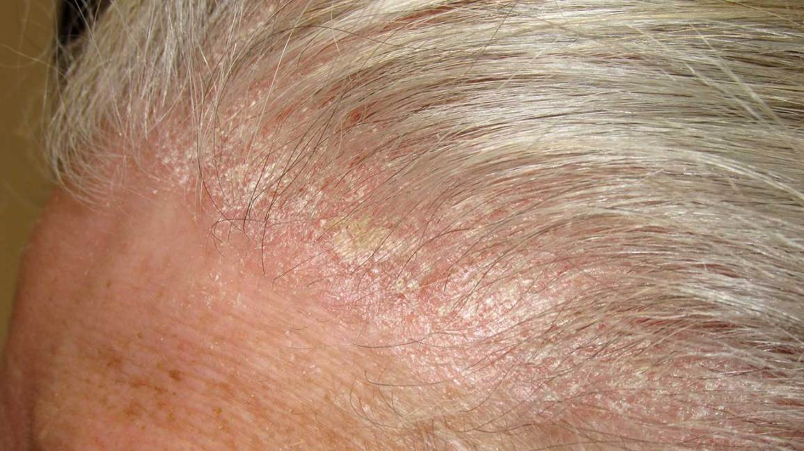remove dried blood from hair