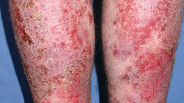 Infected Eczema Pictures Treatment Removal And More