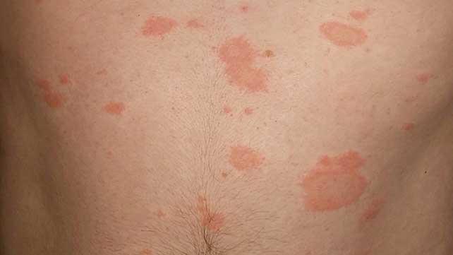rash abdomen not itchy