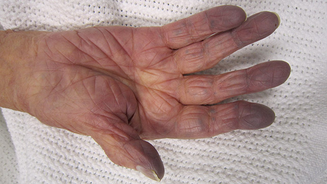 peripheral cyanosis symptoms causes and treatments