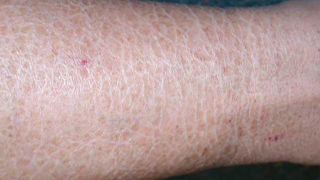 skin dryness causes