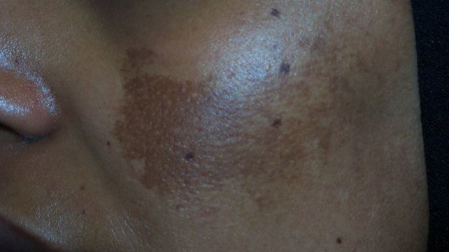 Skin Disorders: Pictures, Causes, Symptoms, Treatments ...