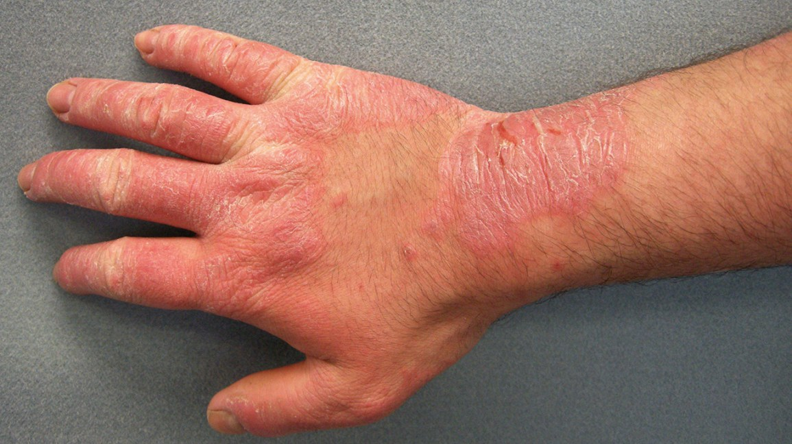 Skin Rash Pictures Causes Types And Treatments