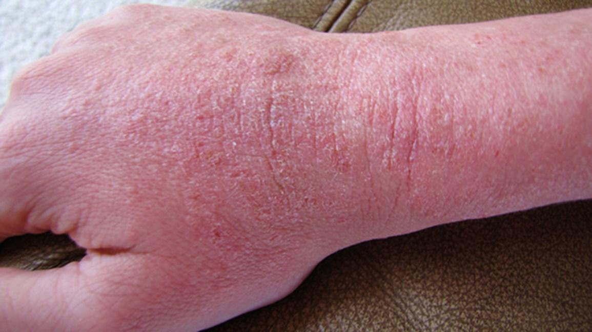Anal tear bacteria rash