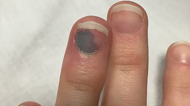 Melanoma Under Nail Treatment Nail Ftempo