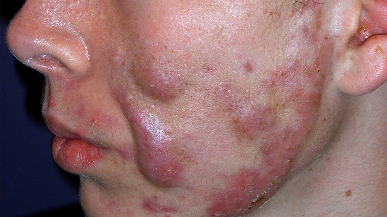 acne cysta