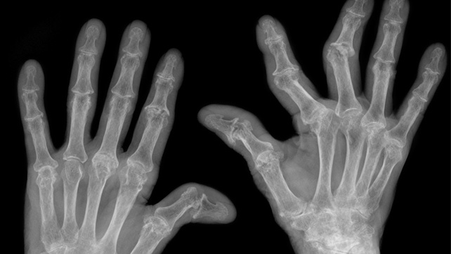 arthritis in fingers and knuckles pictures 8 symptoms more