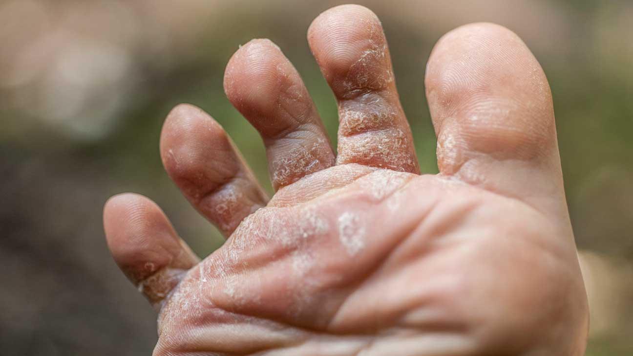 Descuamare piele degete picioare