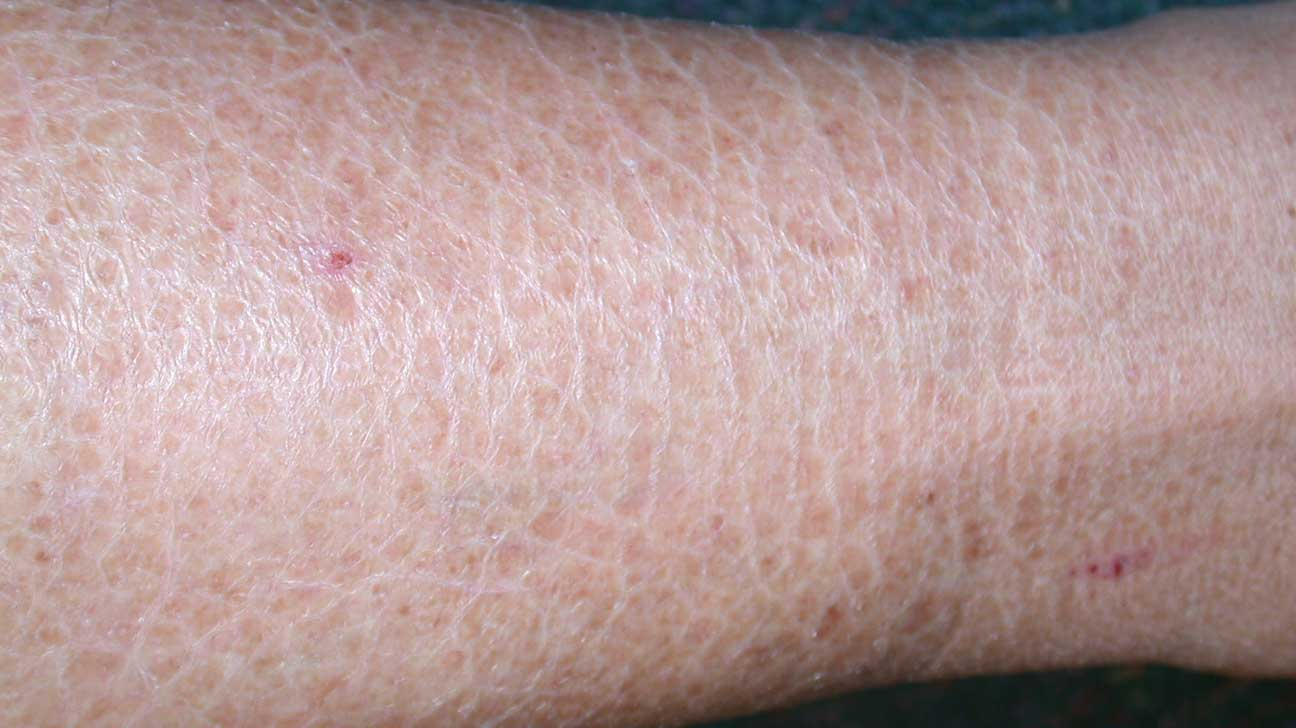 extreme dry skin disease
