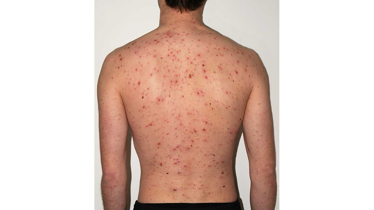 chicken pox Adult picture