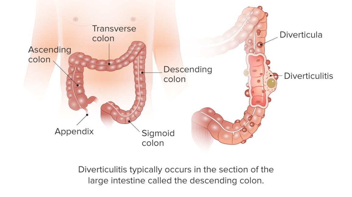 Diverticulitis Symptoms Causes Treatments More