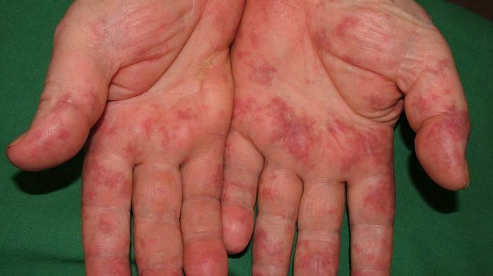 Image result for itchy skin liver problems
