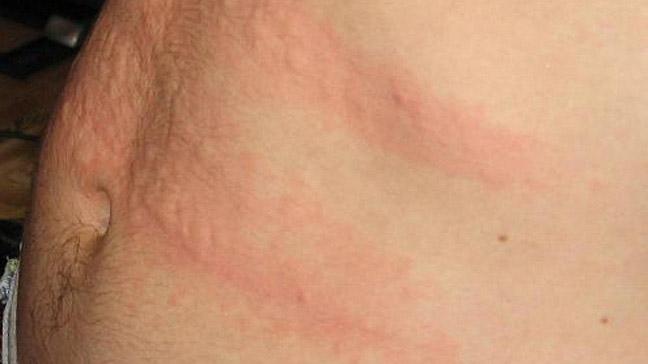 cirrhosis skin rash