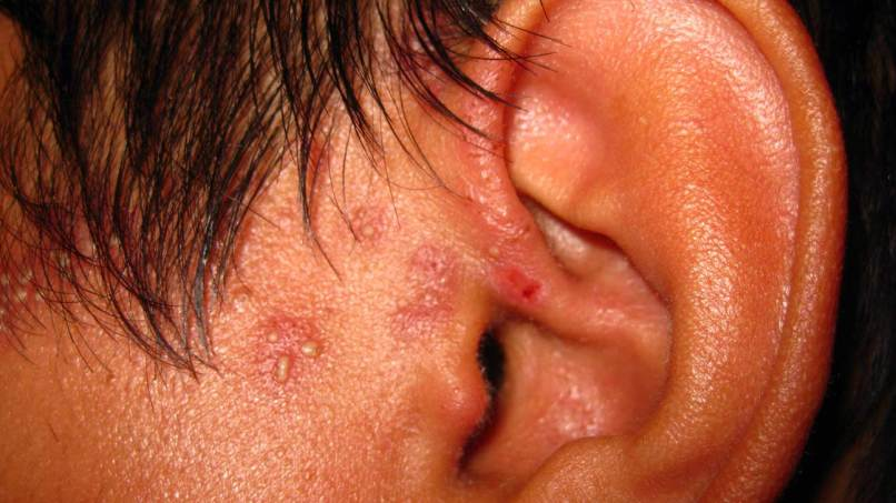 Dry Red Flaky Spots On Scalp   Diydrywalls org