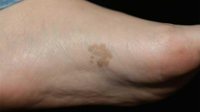 dark patch of dry skin on foot