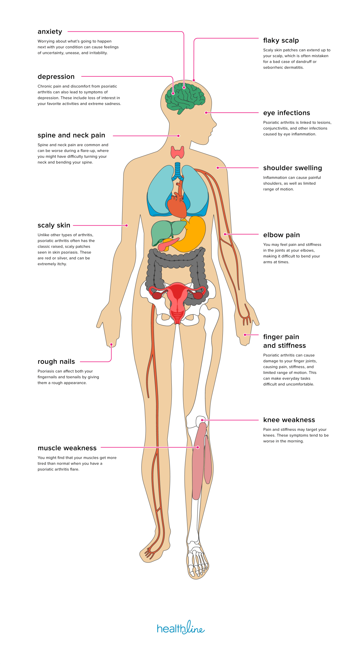 The Effects Of Psoriatic Arthritis On The Body