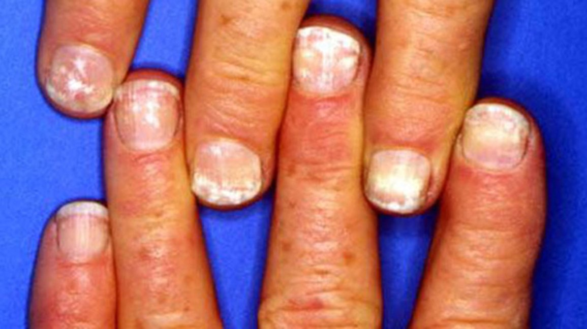 white spots on the nails causes and more