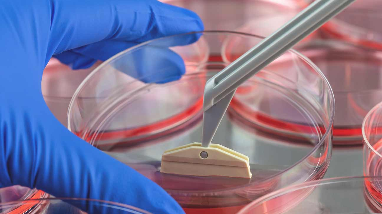 multiple to Adult treat cells sclerosis stem