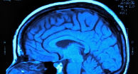 Iron Deposits in the Brain May Be Early Indicator of MS