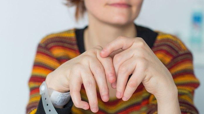 malignant cancers risks rheumatoid arthritis