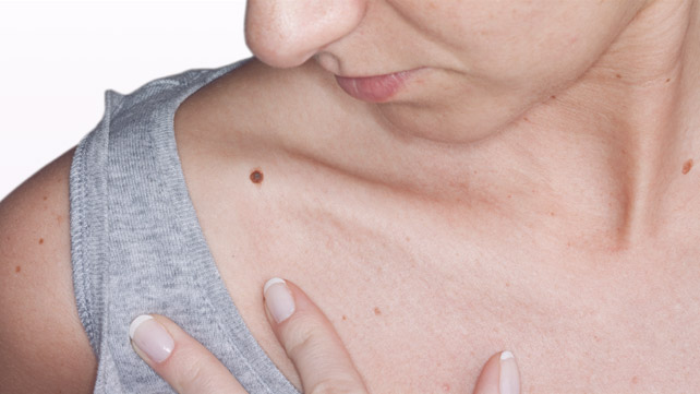 Skin Cancer Risk