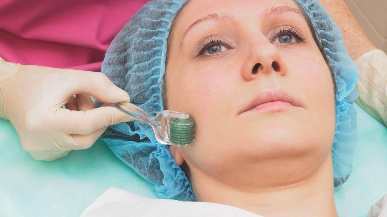 microneedle skin care