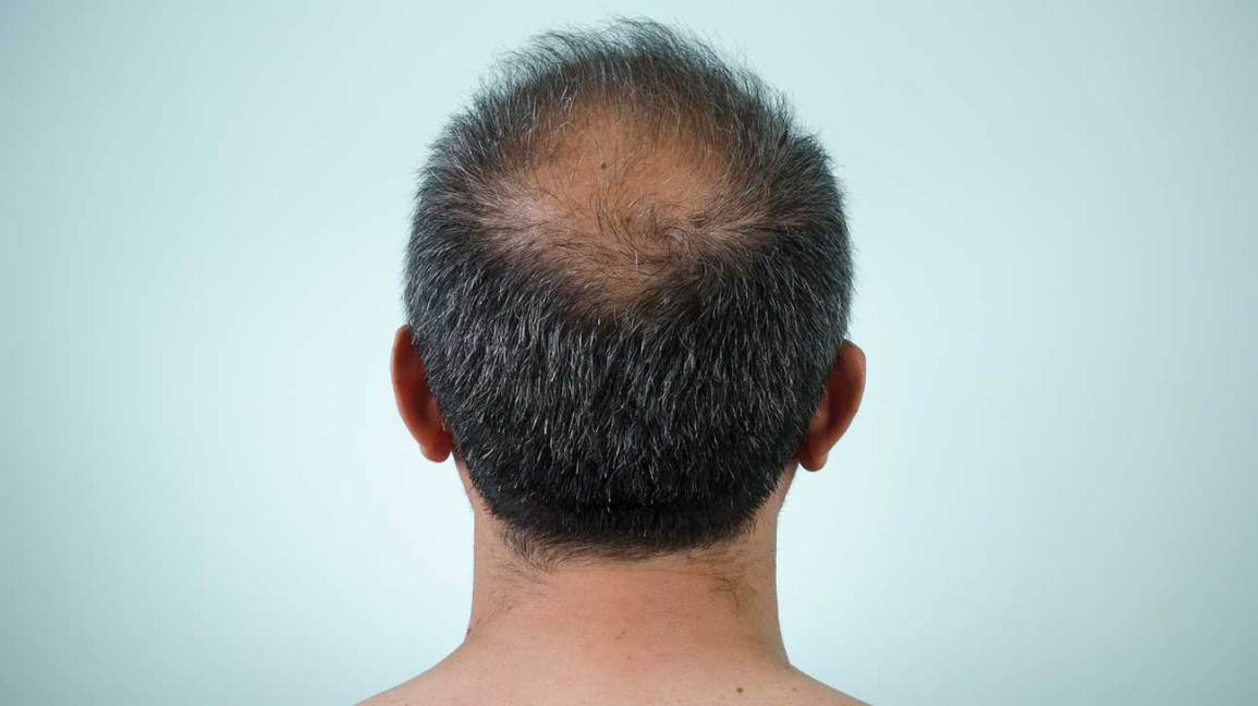 Scalp Conditions Pictures Causes And Treatments