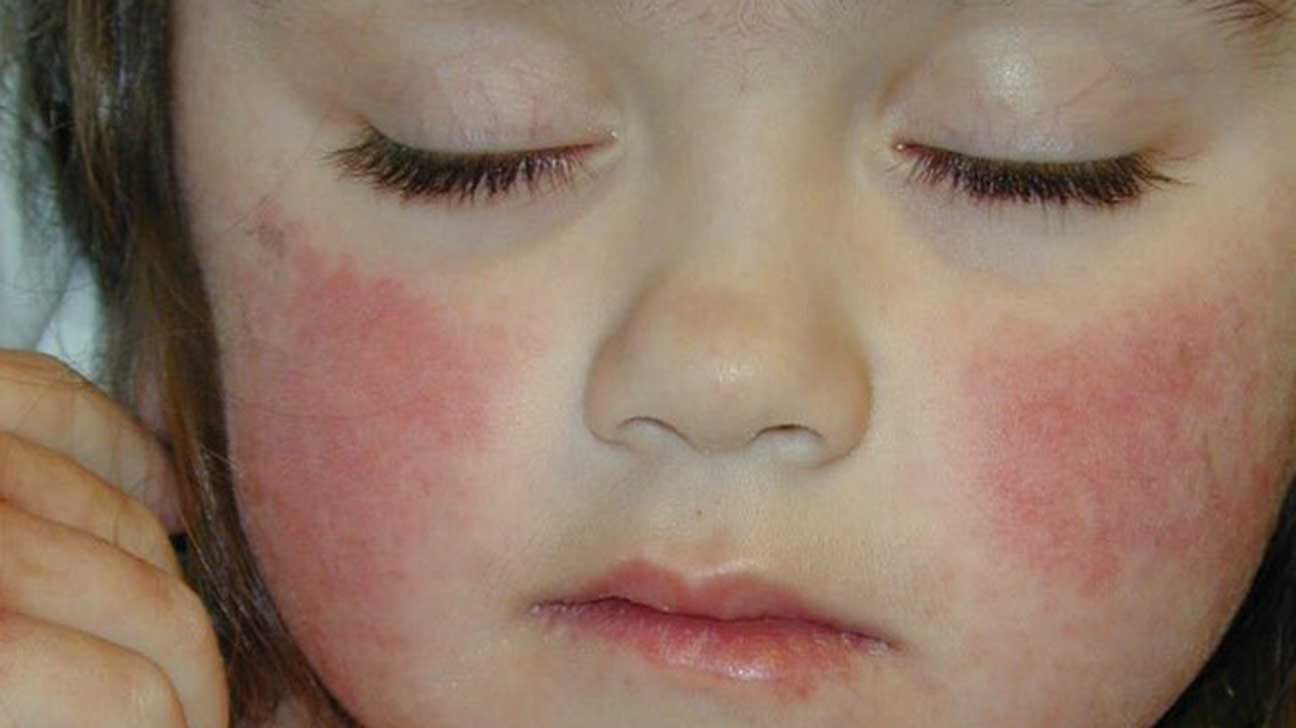 Disease facial skin