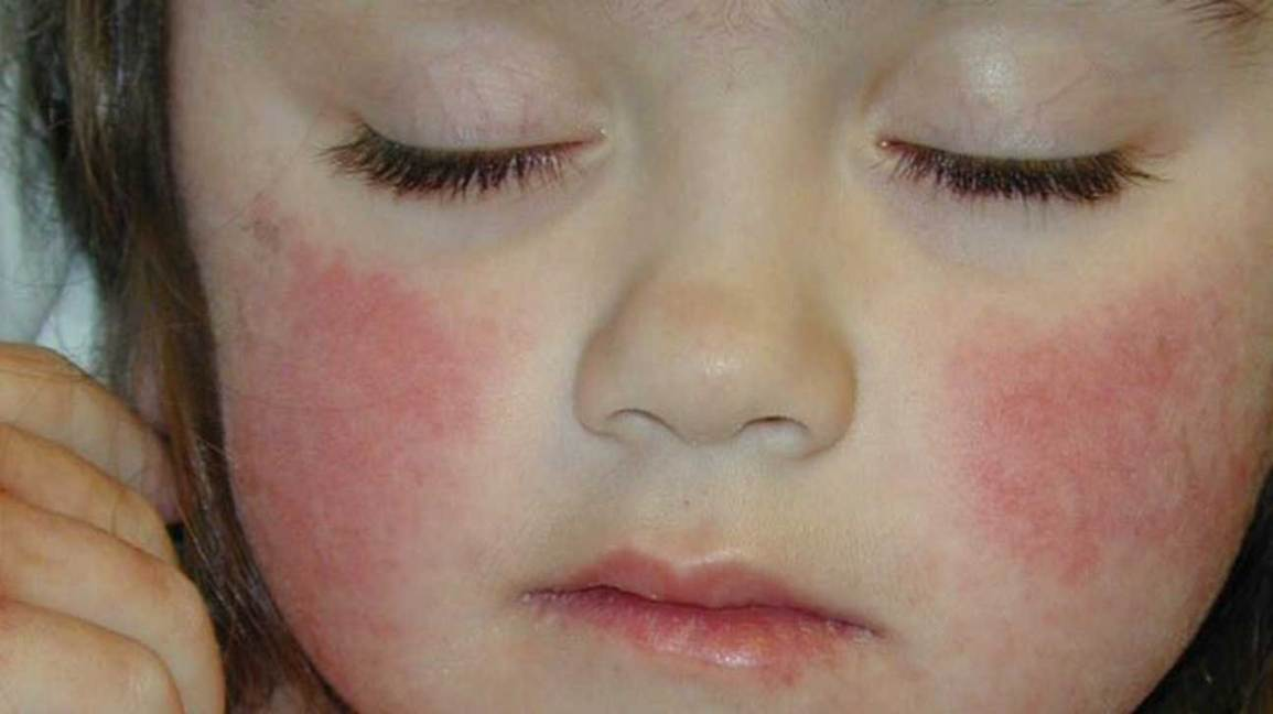 fifth disease