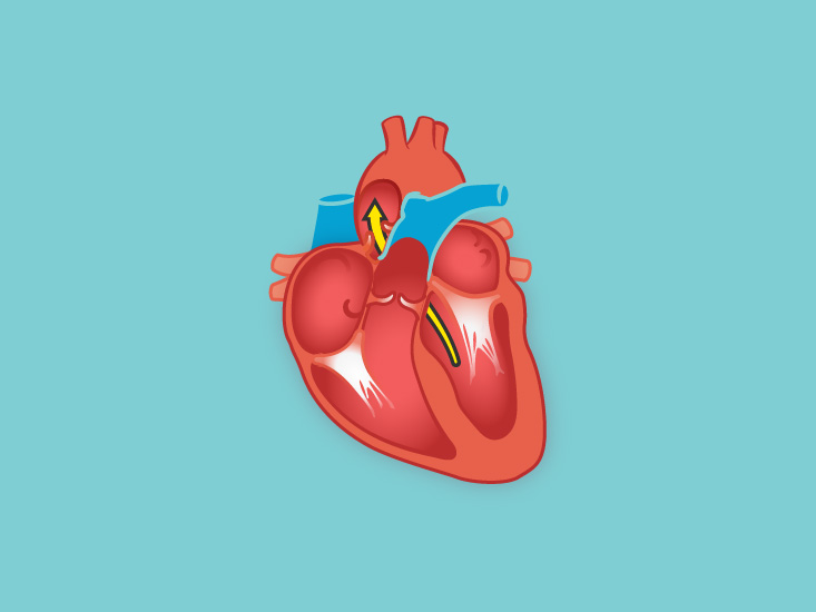 Right Ventricle Function Definition Anatomy Body Maps
