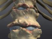 Los efectos y la evolución de la Espondilitis Anquilosante