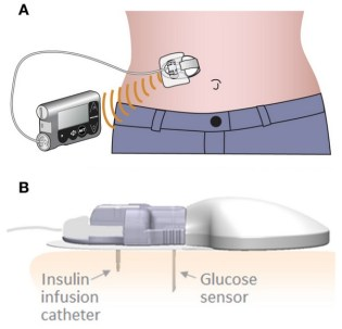Newsflash New Dual Diabetes Device From Medtronic