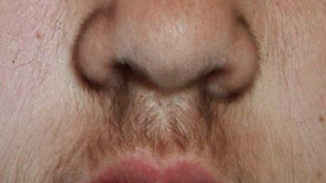 Increased facial hair during pregnancy exist? opinion