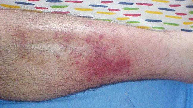 Image result for Cellulitis
