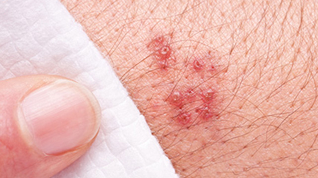 first blush early symptoms of shingles