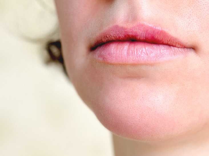 Something pussy lips really sore when having sex