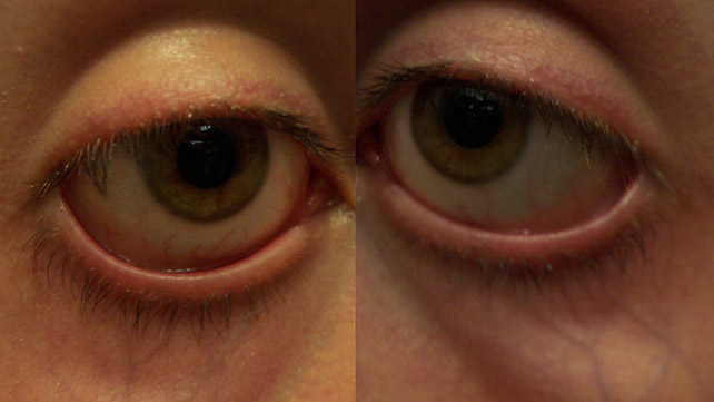 Sunken Eyes: Causes Pictures and Treatments