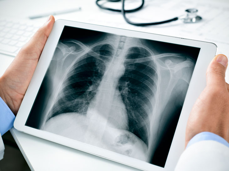 chest x ray purpose procedure and risks
