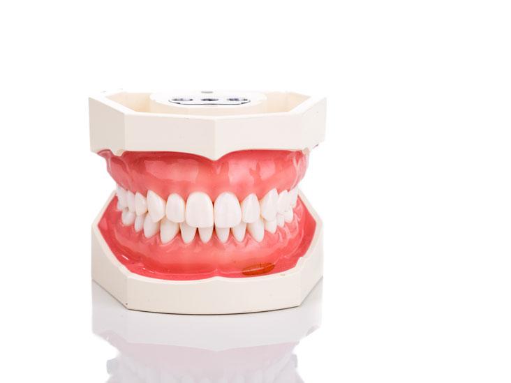 Kết quả hình ảnh cho Incurable complications of tooth decay