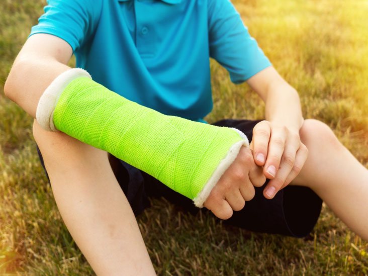 Fracture Definition And Patient Education