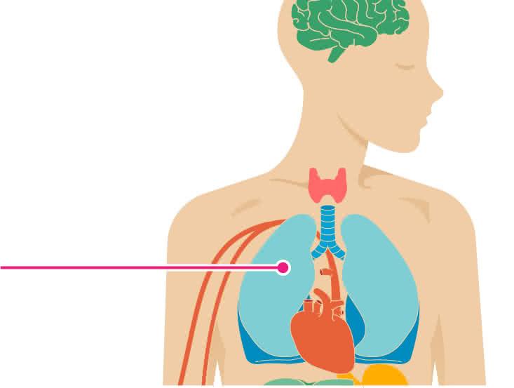 in adults pneumonia Walking older