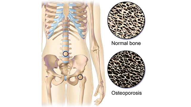 Osteoporosis Everything You Need To Know