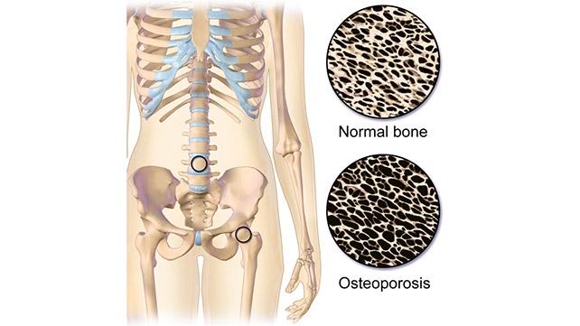 Resultado de imagem para osteoporosis