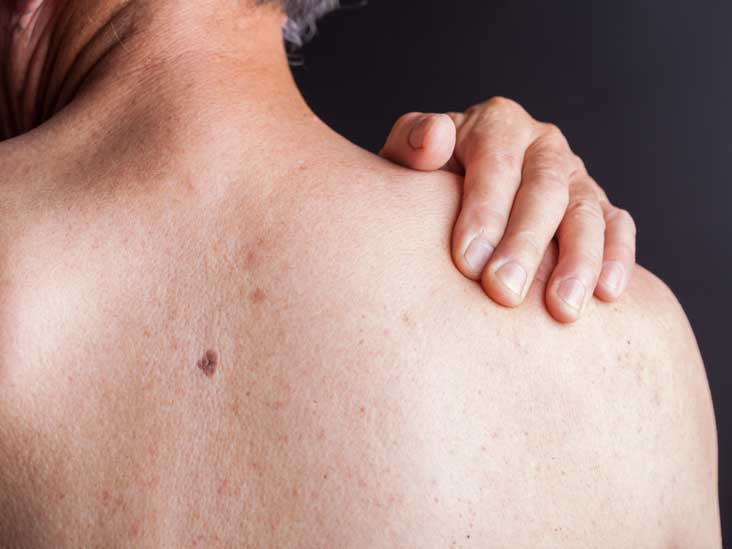 HIV rash: symptoms and treatments