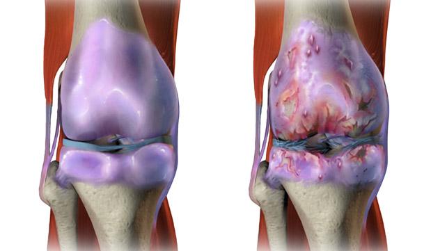 Osteoarthritis Image Gallery