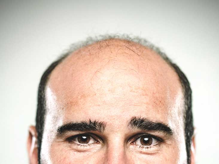 Medications That Cause Hair Loss List What You Can Do And More