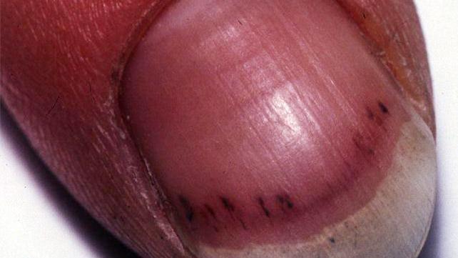 splinter hemorrhages symptoms causes and treatments