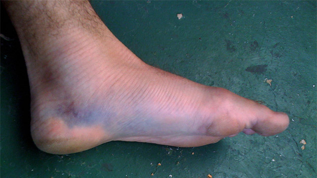 Lisfranc Fracture Causes Symptoms And Treatments