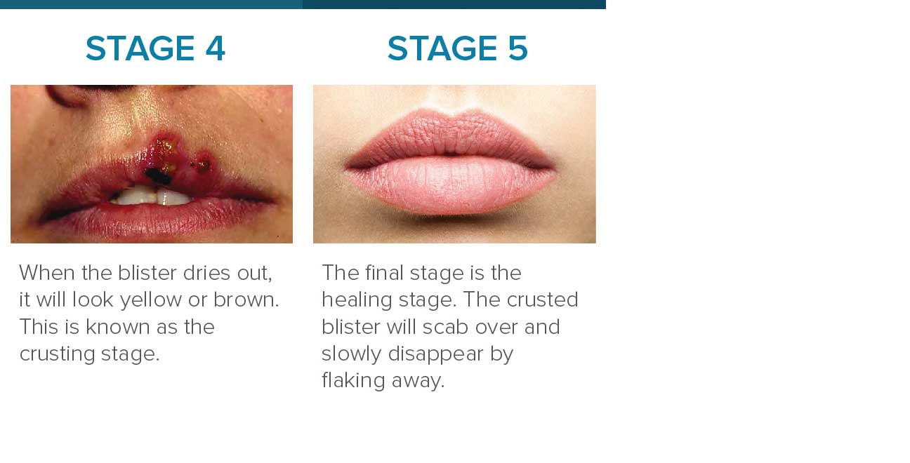 What does it mean when a cold sore turns yellow
